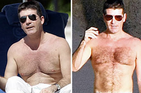 Simon Cowell Loses Man Boobs